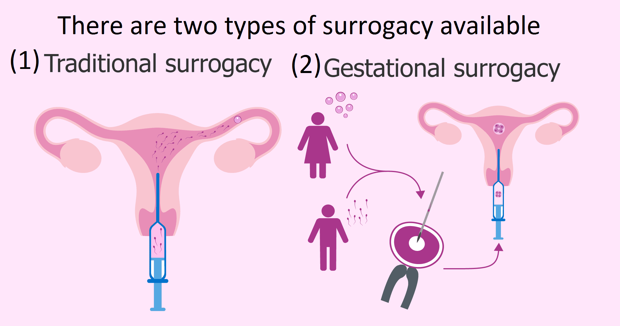 There are two types of surrogacy available